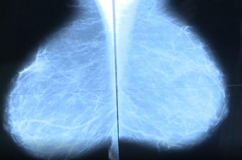 Zadbaj o swoje piersi, przyjdź na badanie mammograficzne !!!